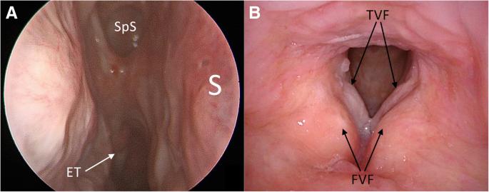 Pathophysiology of nasal papilloma. Endoscopic medial maxillectomy for inverted papilloma.