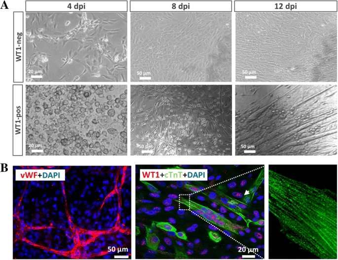 Injury-induced fetal reprogramming imparts multipotency and