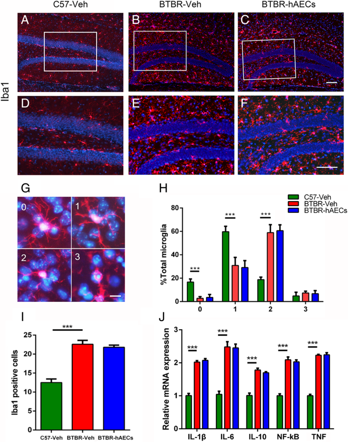Human amniotic epithelial cell transplantation promotes neurogenesis