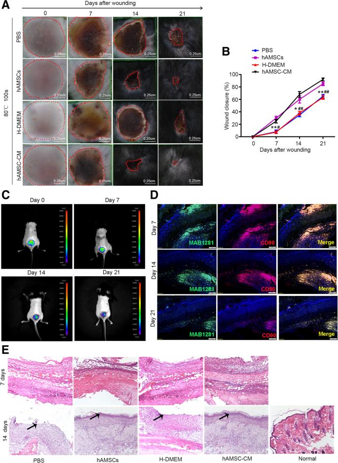 Human amniotic mesenchymal stem cells and their paracrine factors
