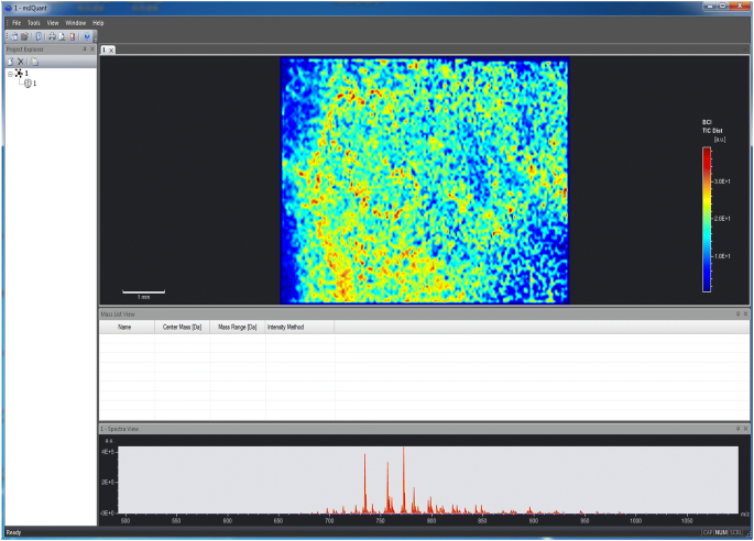 Software solutions for evaluation and visualization of laser
