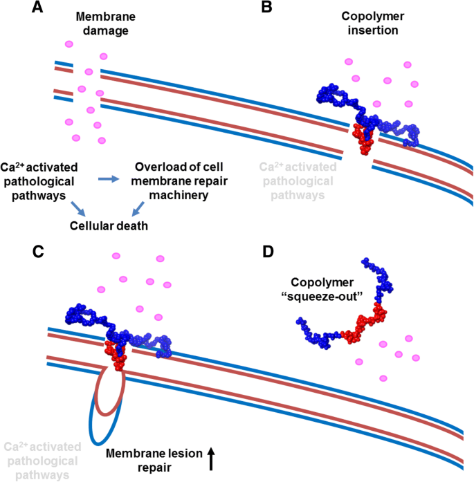 Muscle membrane integrity in Duchenne muscular dystrophy: recent
