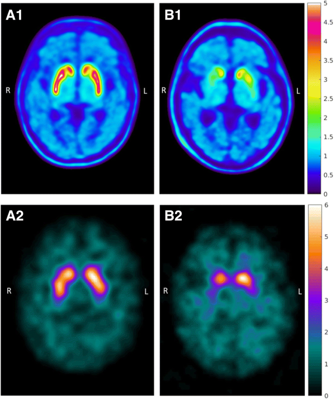 Dopamine transporter imaging with [ 18 F]FE-PE2I PET and