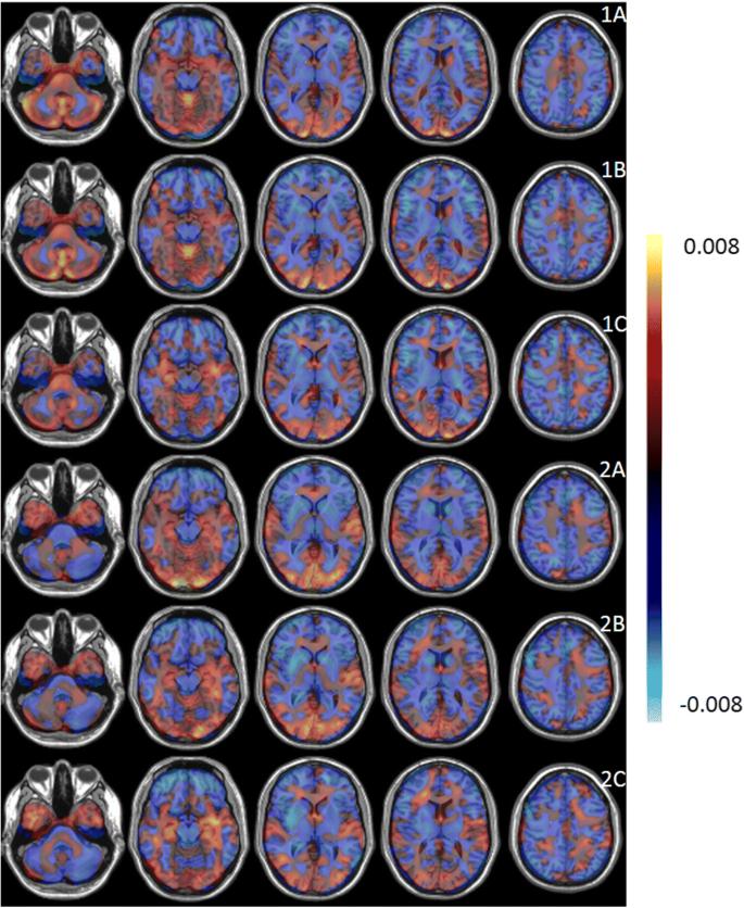 Glucose metabolic brain patterns to discriminate amyotrophic