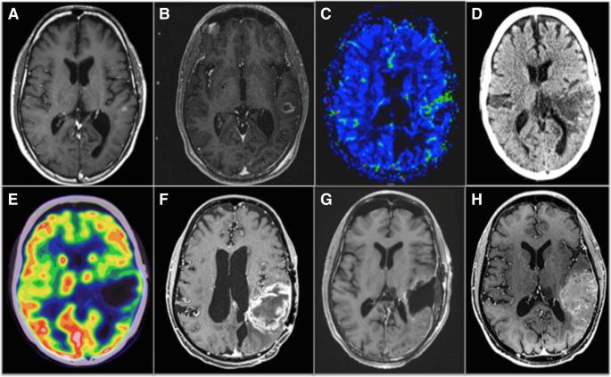 Imaging-guided precision medicine in glioblastoma patients