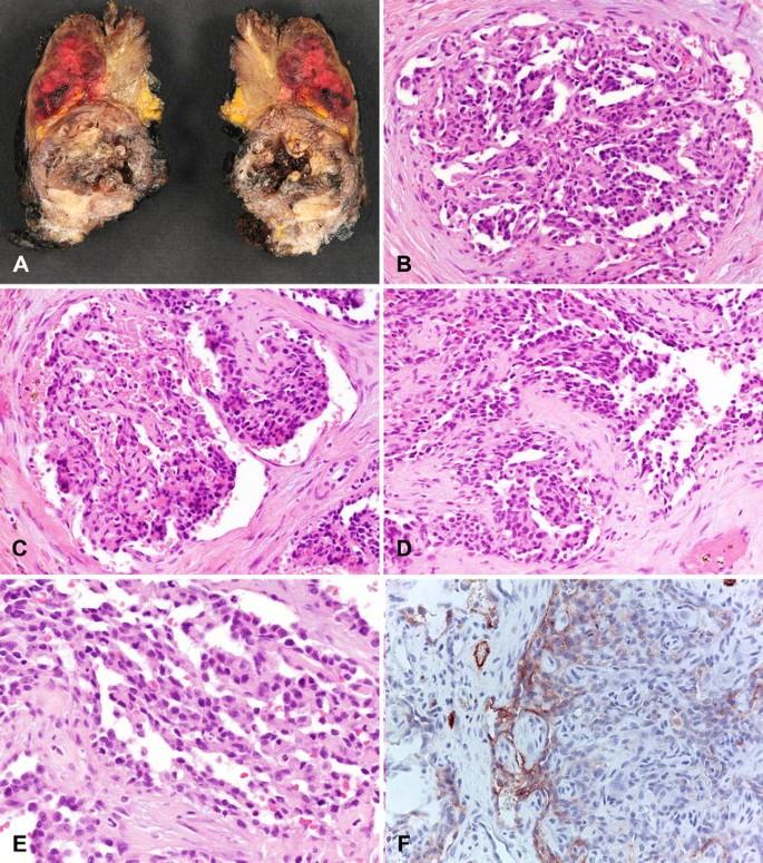 Intraductalis papilloma, amelyet a hpv okoz. Intraduktális emlőpapilóma