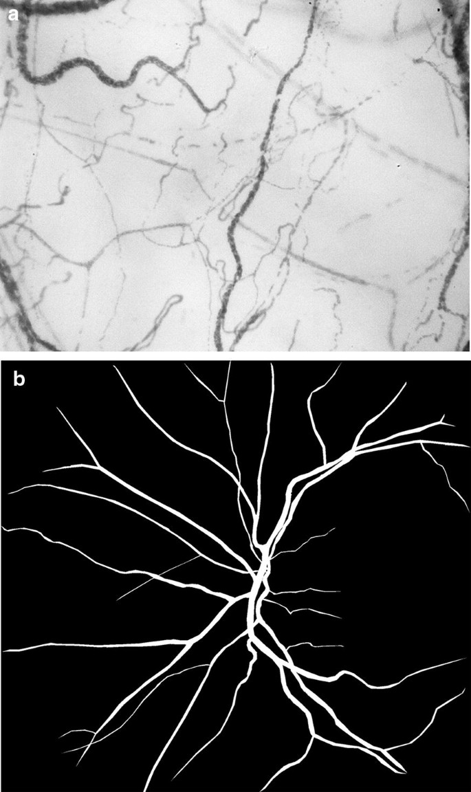 Ocular microvascular changes in patients with sepsis: a ...