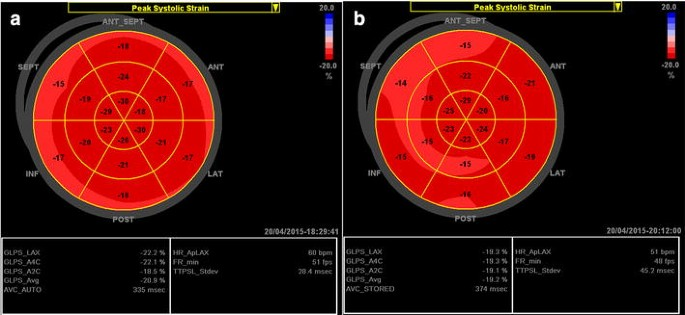 Longitudinal strain bull's eye plot patterns in patients