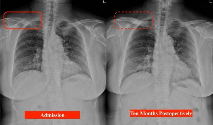 Prostatitis DMS kezelés Prosztata sclerosis a prosztatitis