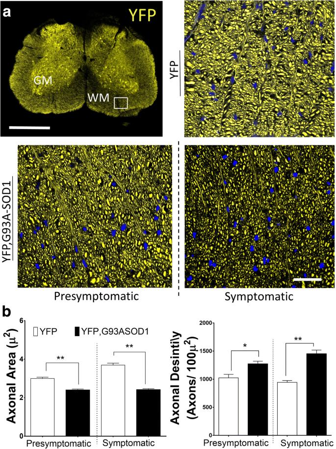 Ultra-High Field Diffusion MRI Reveals Early Axonal
