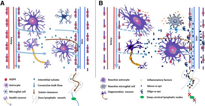 Blocking meningeal lymphatic drainage aggravates Parkinson's