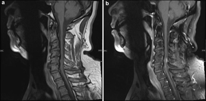 A rare case of intramedullary 'whorling-sclerosing' variant