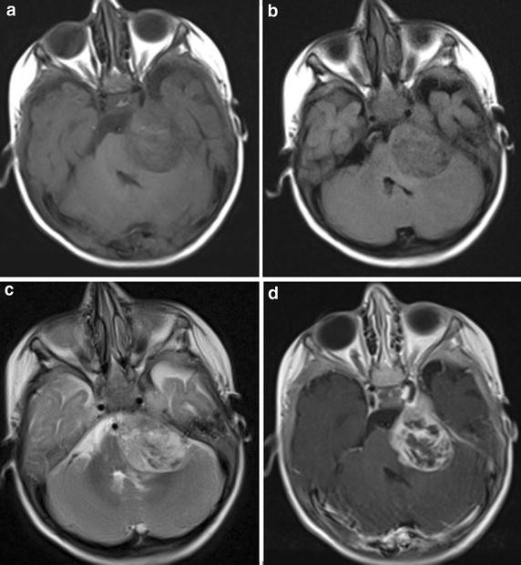 A rare cause of infant facial paralysis: atypical teratoid
