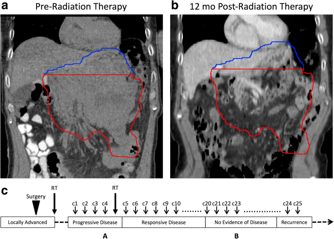 In-field and abscopal response after short-course radiation