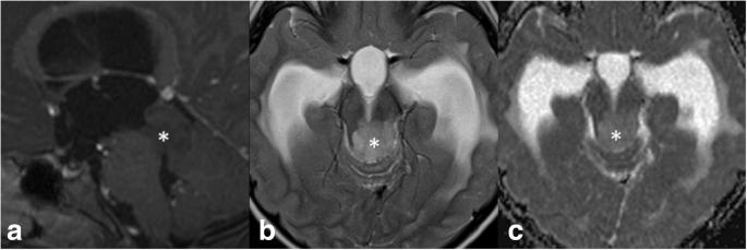 Tectal glioma as a distinct diagnostic entity: a comprehensive