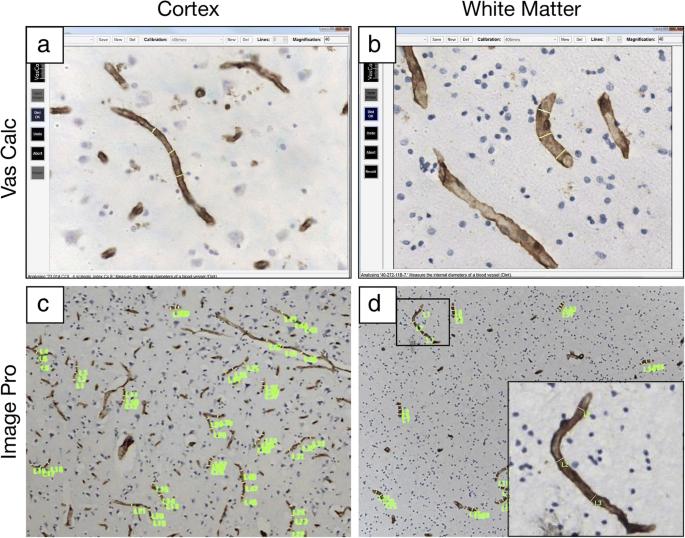 White matter capillaries in vascular and neurodegenerative