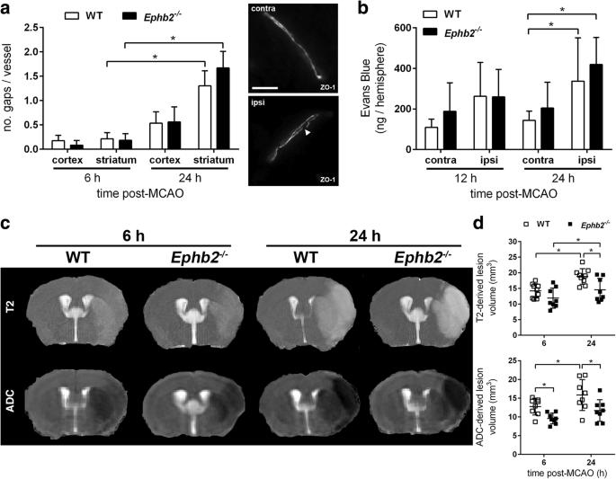 EphB2-dependent signaling promotes neuronal excitotoxicity
