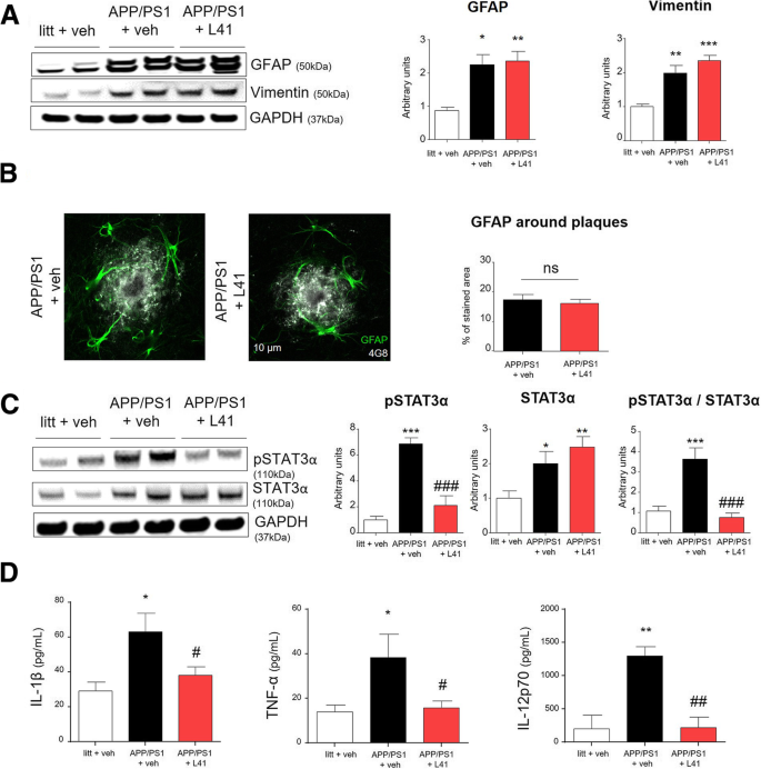 Inhibition of DYRK1A proteolysis modifies its kinase specificity and