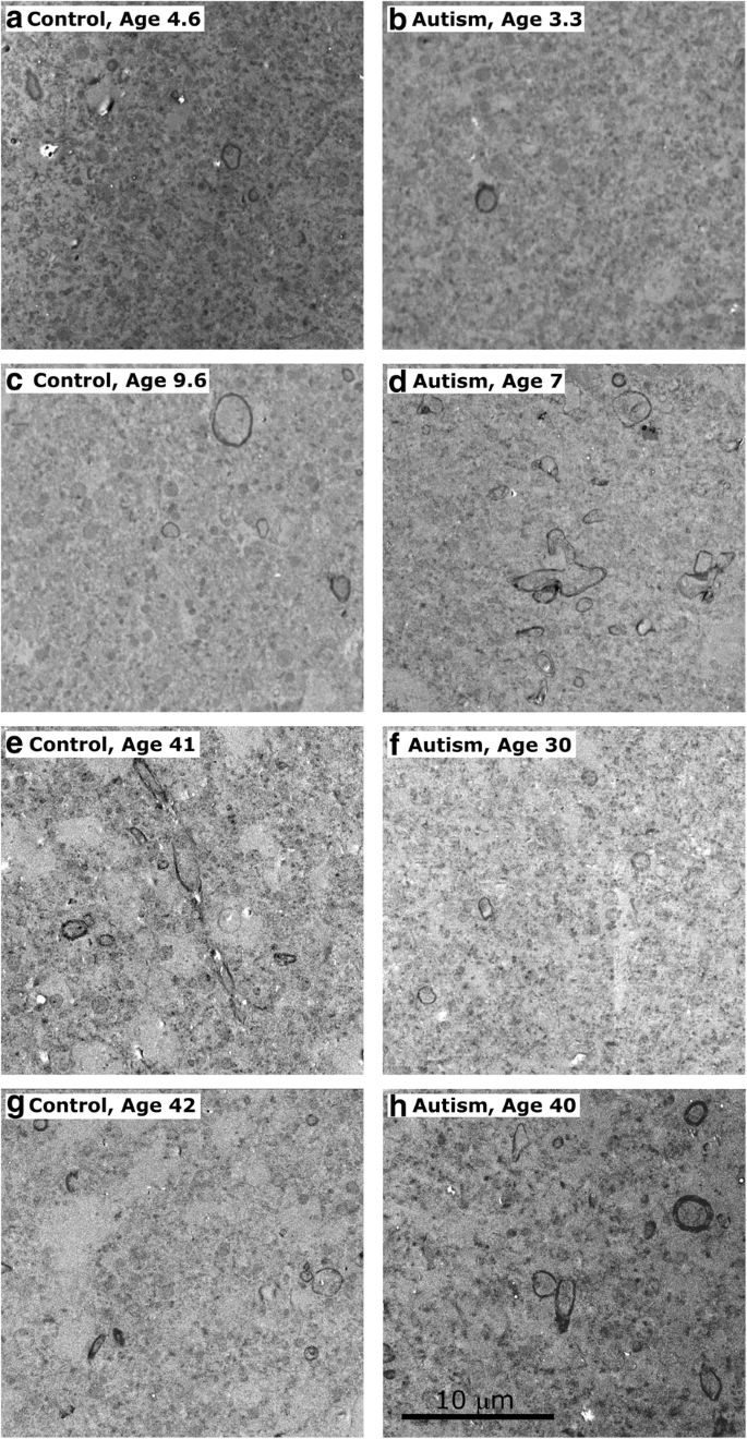 Postnatal development and maturation of layer 1 in the