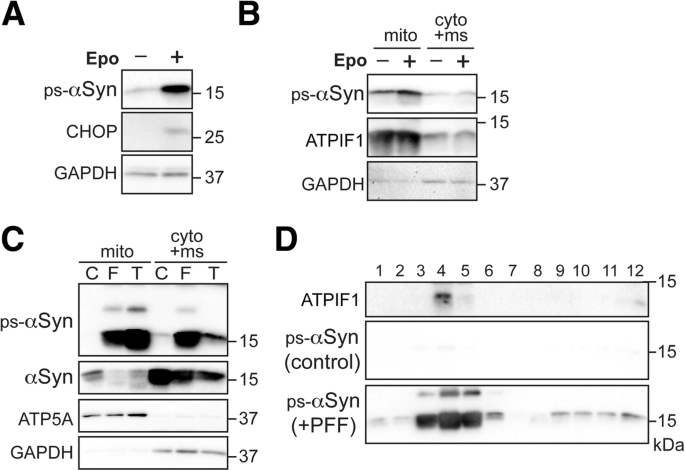 Pathogenic alpha-synuclein aggregates preferentially bind to