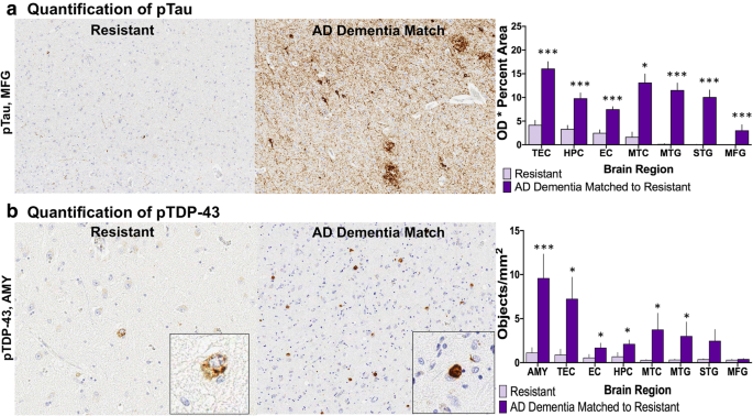 Resistance and resilience to Alzheimer's disease pathology