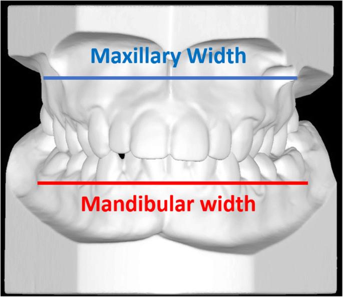 Zygomaticomaxillary modifications in the horizontal plane