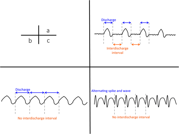 Continuous EEG monitoring in ICU | Journal of Intensive Care