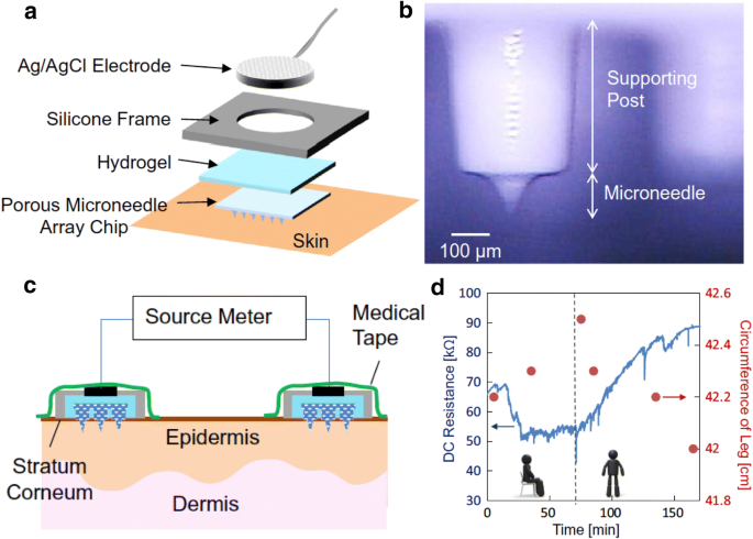 Functionalized microneedles for continuous glucose monitoring   Nano