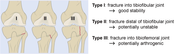Advances in modern osteotomies around the knee | Journal of