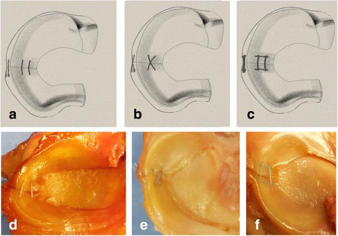The rebar repair for radial meniscus tears: a biomechanical