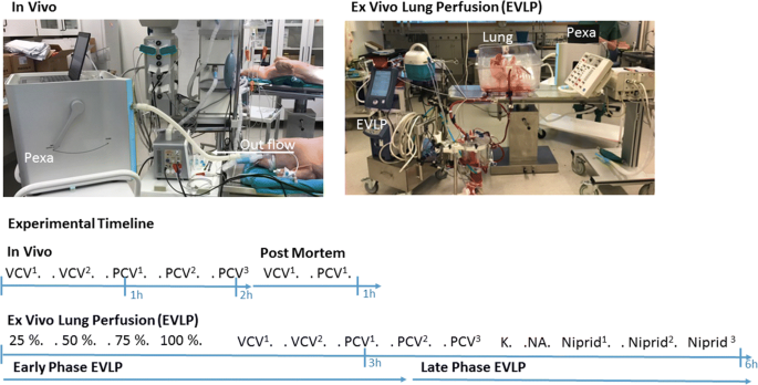 A new way of monitoring mechanical ventilation by