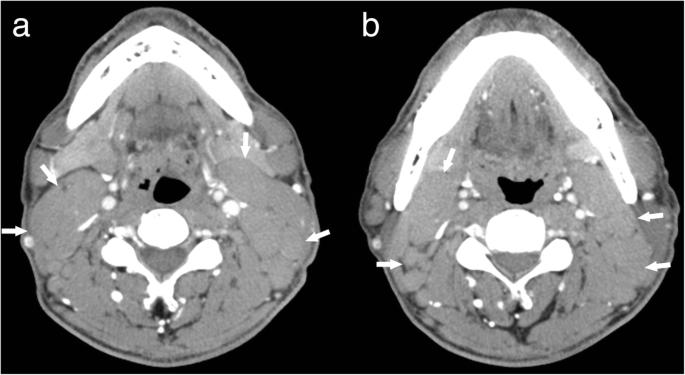 Castleman disease versus lymphoma in neck lymph nodes: a