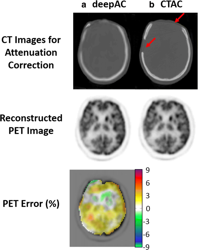 A deep learning approach for 18 F-FDG PET attenuation correction