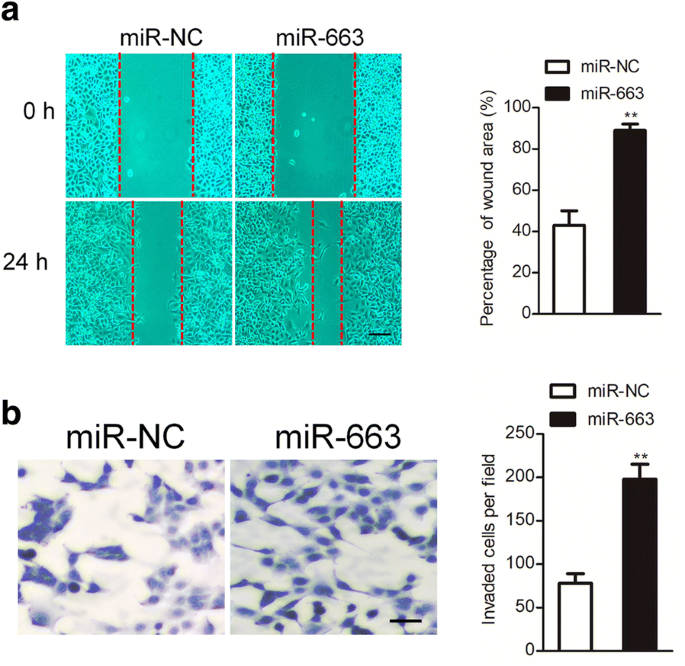 MicroRNA-663 facilitates the growth, migration and invasion of