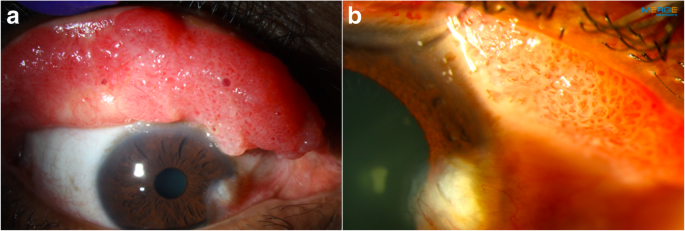 papilloma of conjunctiva icd 10 code for human papillomavirus infection