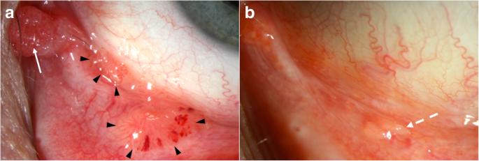papillomatosis interferon kezelés