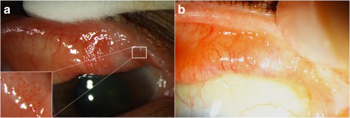 papilloma of conjunctiva