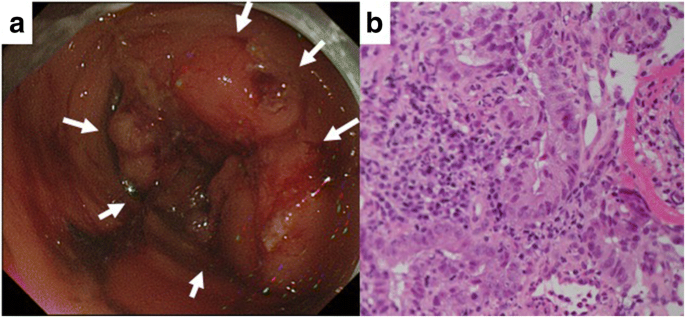 Pathological Complete Response Of Locally Advanced Colon Cancer After Preoperative Radiotherapy A Case Report And Narrative Review Of The Literature Surgical Case Reports Full Text