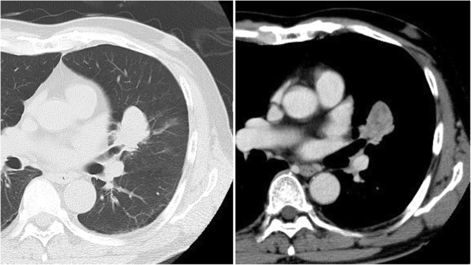 Pure high-grade fetal adenocarcinoma of the lung: a case report