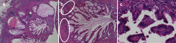Atypical papillary neoplasm. Understanding Pathology for Breast Cancer ciuperci in saramura
