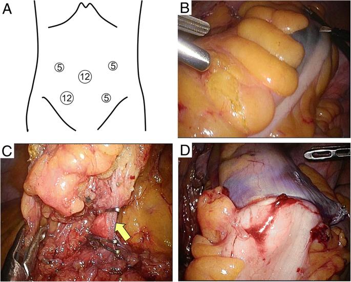 reoid cancer laparoscopic paraziti u crevima lecenje