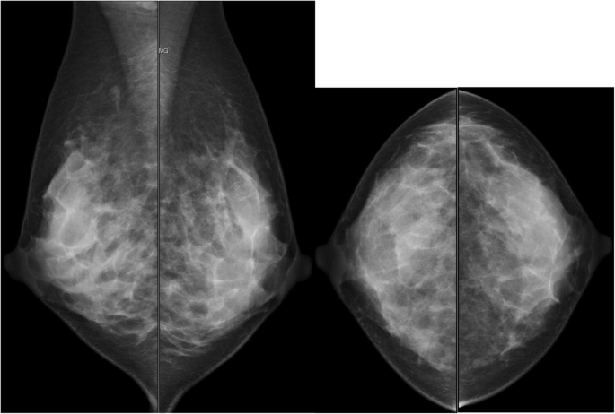 Amyloid tumor of the breast | Surgical Case Reports | Full Text