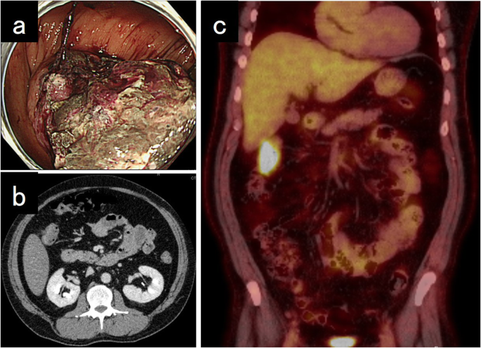 Undifferentiated Carcinoma Of The Transverse Colon With Rhabdoid Features That Developed During Treatment Of Non Small Cell Lung Carcinoma With Pembrolizumab A Case Report Springerlink
