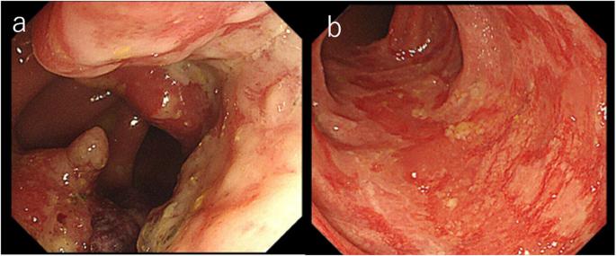 rectosigmoid cancer stent papilomele la femeile de pe gât cauzează