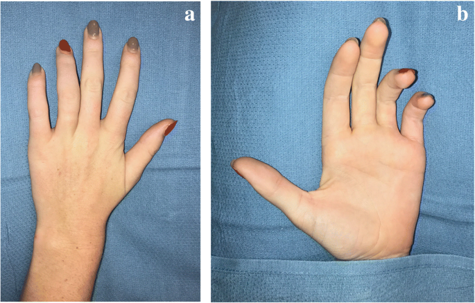 Peripheral nerve injury with Nexplanon removal: case report