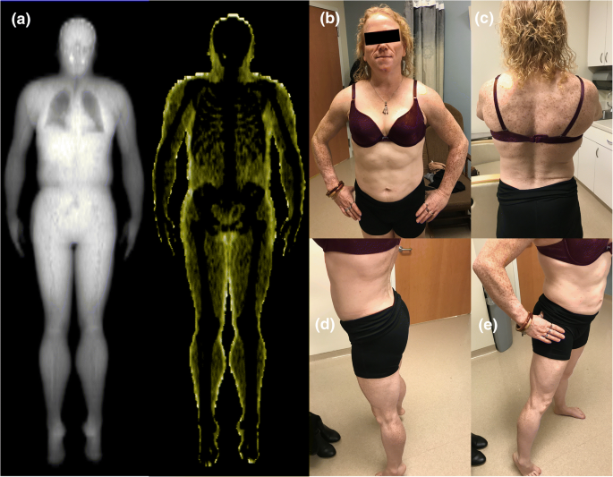 Diagnosis of acquired generalized lipodystrophy in a single