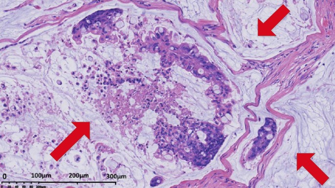 Mucinous Colorectal Adenocarcinoma Clinical Pathology And Treatment Options Cancer Communications Full Text