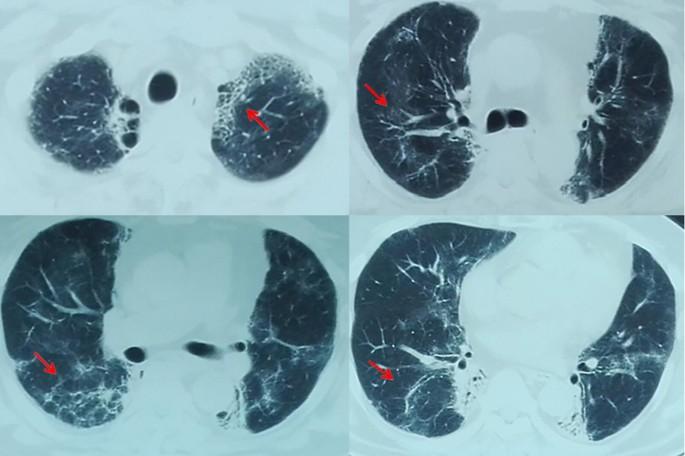 Radiation pneumonitis complicated by Pneumocystis carinii in