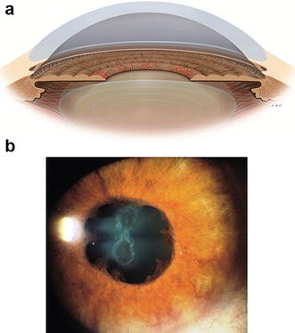 Neovascular glaucoma: a review | International Journal of