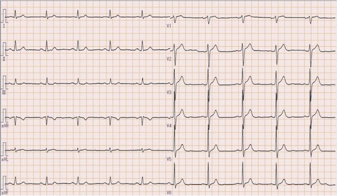 Ventricular tachycardia without preceding electrocardiogram